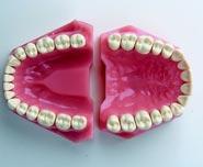 Модель верхней челюсти с зубами