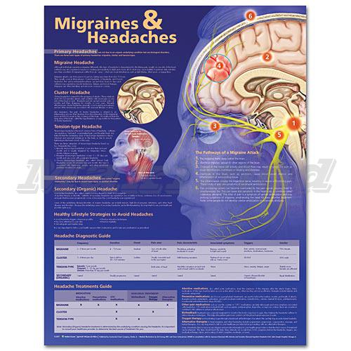 a brief introduction and a summary of migraine headaches as the result of a disturbance in the neuro